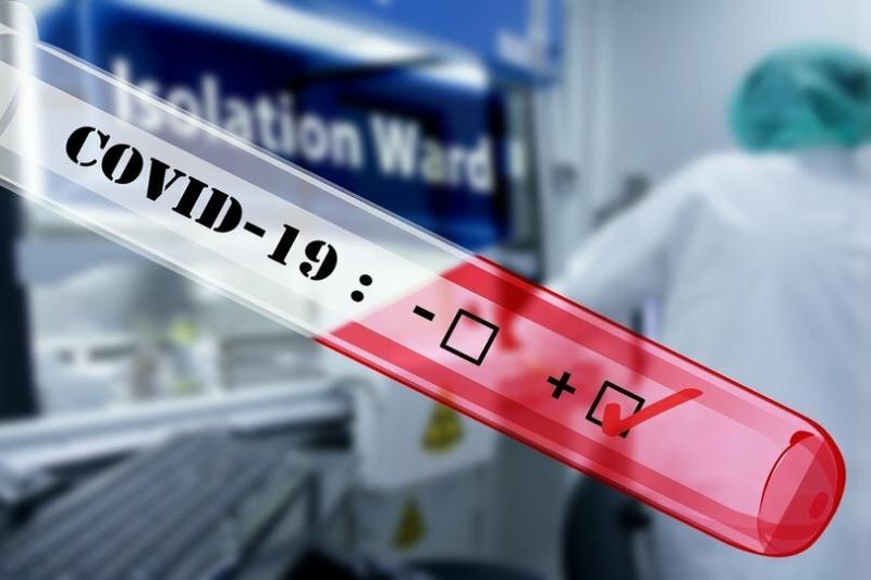Ученые выяснили, влияет ли коронавирус на беременных