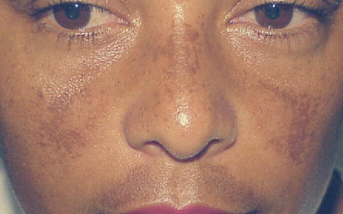 Пигментация на лице во время беременности