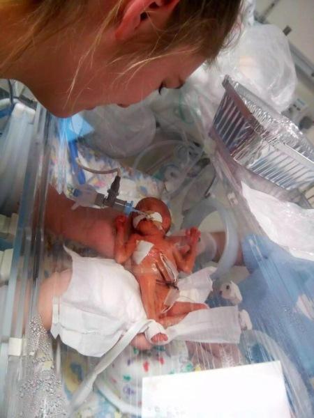 Девочка, рожденная с весом 540 грамм, выжила. Вот как это выглядит сейчас