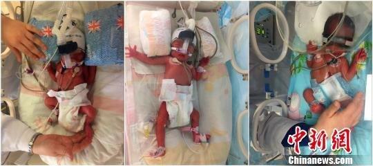 Женщина родила двойню через шесть дней после рождения первенца