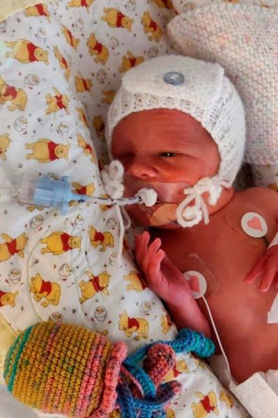 Беременная женщина перенесла две операции, чтобы спасти нерождённого ребенка