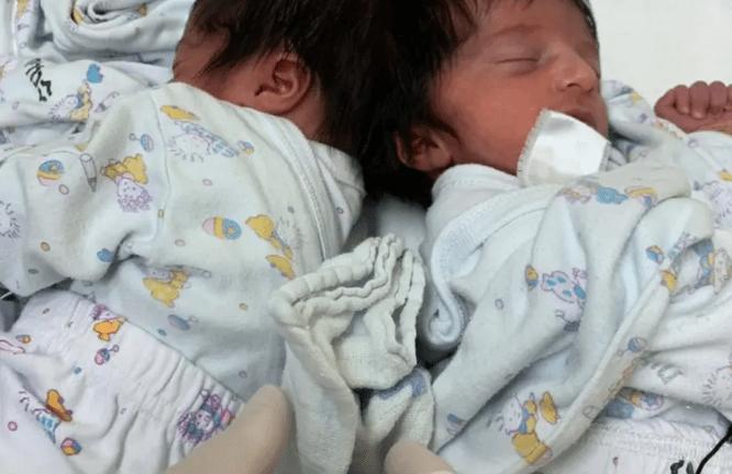 Они увидели друг друга! ВИзраиле сиамским близнецам провели уникальную операцию